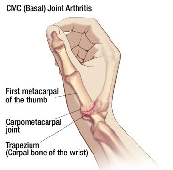Thumb Arthritis: pain at the base of the thumb with increasing grip weakness